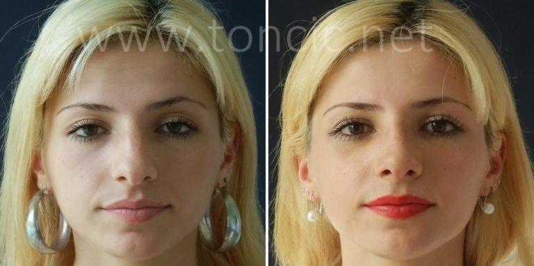 Operacija nosa cijena