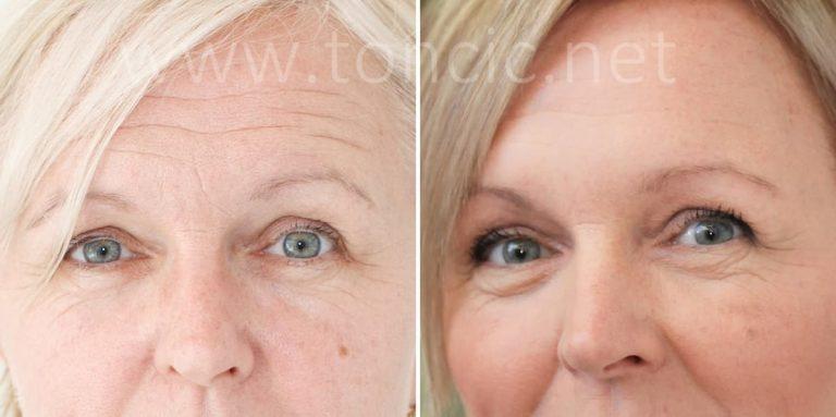 Tretman pomlađivanja lica, čela
