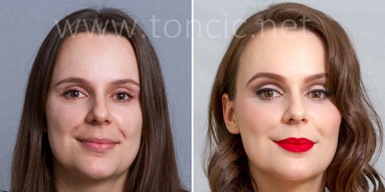 Tretman pomlađivanja lica Zagreb