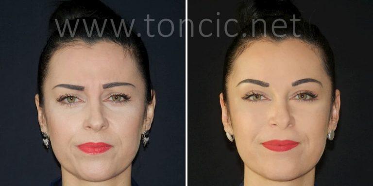 botox za lice akcija